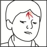hautverletzung kinder